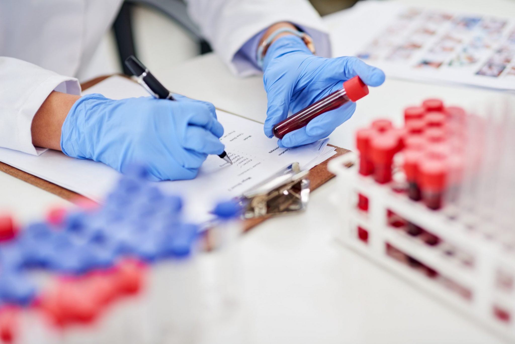 Blood samples clinical trial